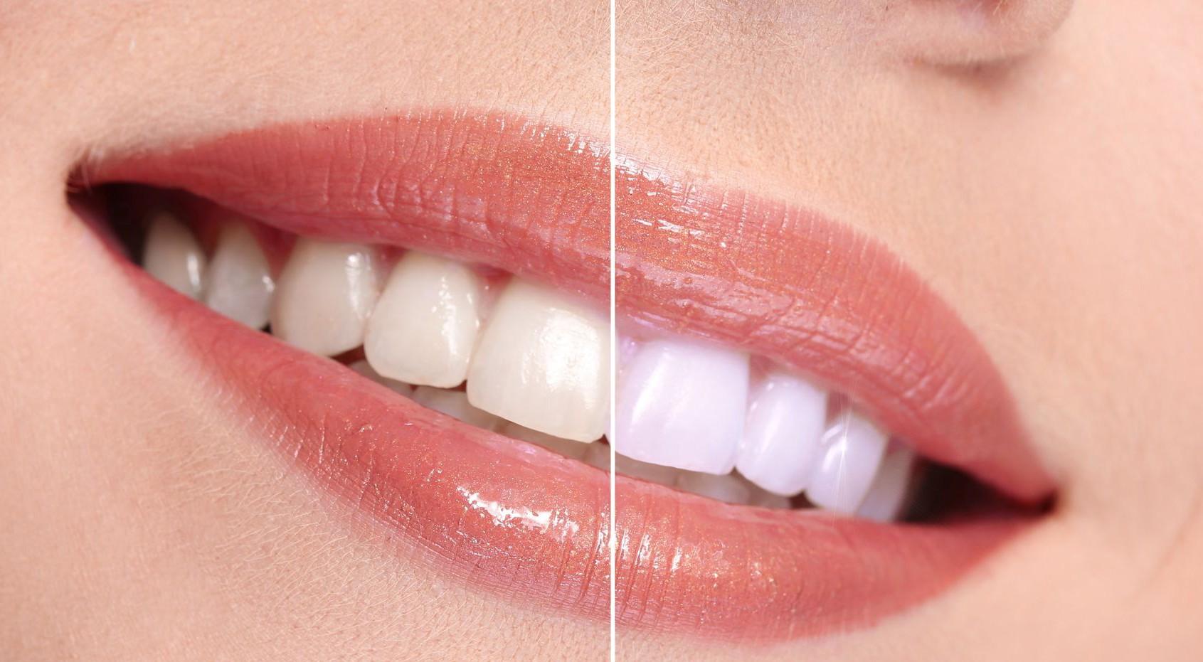 Fructele și legumele care te pot ajuta să îți albești dinții în mod natural